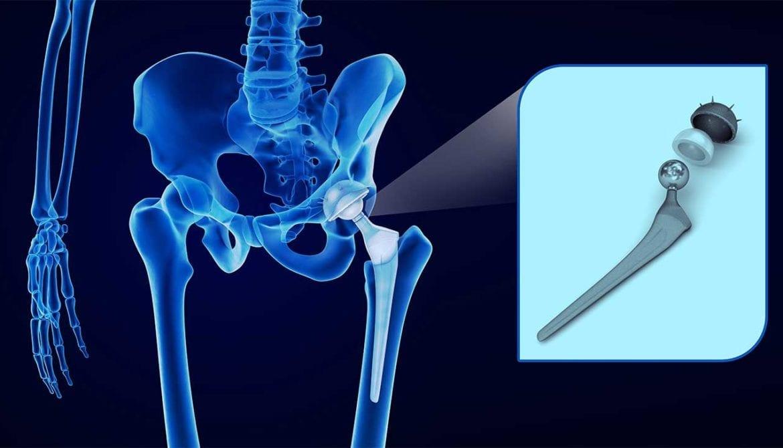 Defective Hip Implant Attorneys